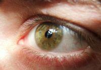 Green Eye :)